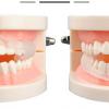 ฟันยางกันกัดฟัน ซิลิโคนครอบฟัน Fawnmum
