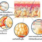 เซลล์ลูไลท์เกิดจากอะไร? มีวิธีจัดการอย่างไร? & Review เจลกระชับสัดส่วน BANCREAM COVER GEL