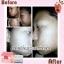 Aliceza Gluta By Nanny อลิซซ่า กลูต้า โดยแนนนี่ (เจ้าหญิงแห่งความขาว อมชมพู) แพคเก็จใหม่ thumbnail 6