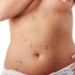 วิธีการลดความอ้วน ด้วยการดูดไขมัน ต้องระวัง มีผลดีผลเสีย