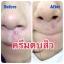 ครีมตบสิว สูตรธรรมชาติ Anti – Acne Massaging Cream thumbnail 3