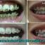 ยาสีฟันโภคา ลดกลิ่นปาก ลดคราบหินปูน ลดคราบเหลือง สูตรใหม่ thumbnail 4