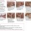 เข็มขัดรัดถุงอุจจาระ ปัสสาวะหน้าท้อง (Convatec Ostomy belt) thumbnail 2