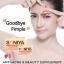 Soniya (โซนิญ่า)อาหารเสริมลดสิวบอกลาหน้าปลวก thumbnail 1