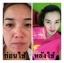 MACHE'RE มาเชอรี่ บาย จูมิ เซ็ตหน้าใส รักษาสิว thumbnail 21