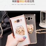 เคส Samsung Galaxy J7 ซิลิโคน TPU ขอบทอง / โรสโกลด์ สวยงามมากๆ หรูหราสุดๆ ราคาถูก