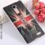 เคส OPPO R7 Plus รุ่น เคสนิ่ม TPU ลายแฟนซี 3D thumbnail 4