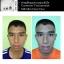 MK Skin Clear Face เซตรักษาสิว อุดตัน สิวเสี้ยน สิวสเตียรอยด์ มี 2 ชิ้นในกล่อง thumbnail 7